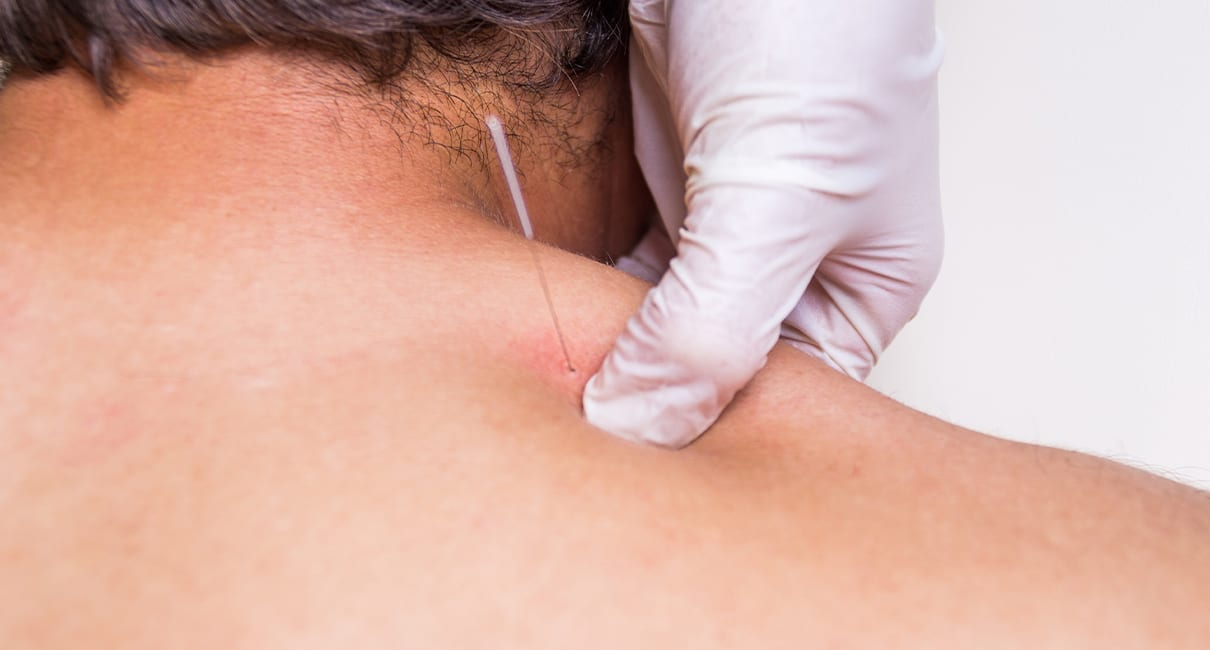 VU21879 Dry Needling | On-Campus Short Course